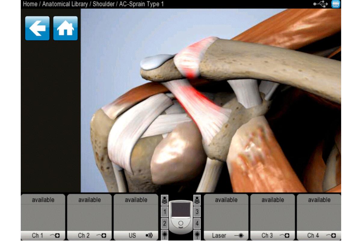 インテレクトネオ付属の解剖学的ライブラリー画面の画像